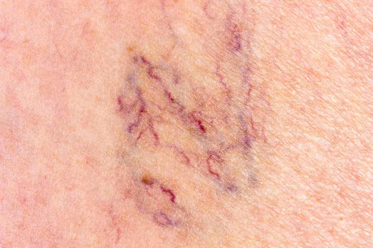varicosités remèdes